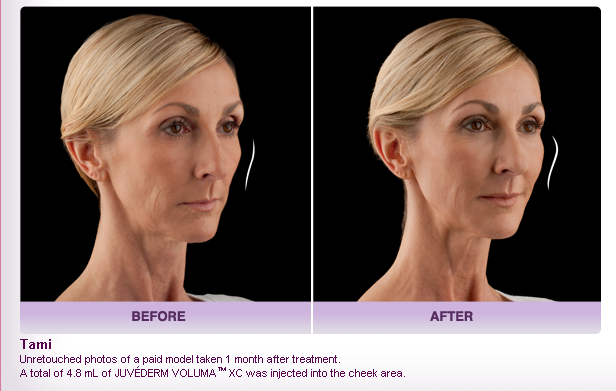 Before and After Oxnard Ventura JUVÉDERM VOLUMA™ XC