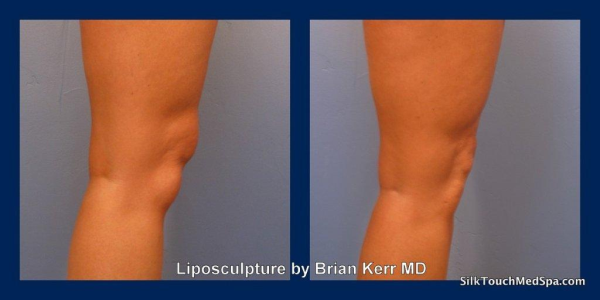 01Liposuction, smartlipo knees and ankles by Brian Kerr MD Boise Idaho resized 600