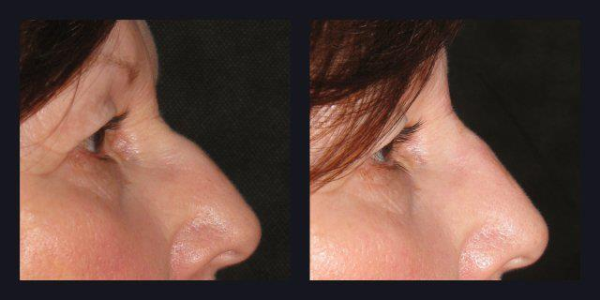 Artefill before and after photos, Artefill rhinoplasty,rhinoplasty non surgical