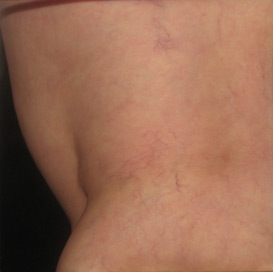 Asclera Spider Vein Treatment | Silk Touch Med Spa, Boise