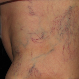 Asclera spider vein treatment | Silk Touch Med Spa | Boise
