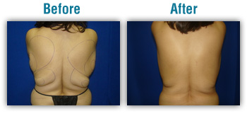 Boise smart lip, laser liposuction, vaser liposuction
