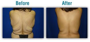 Boise smart lip, laser liposuction, vaser liposuction