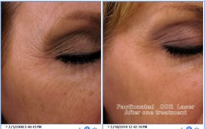 Idaho Laser Resurfacing