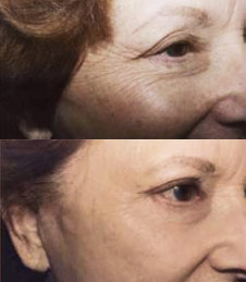 Laser Resurfacing Boise