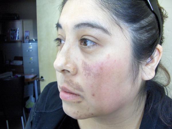 Skin Lightening Peel,before  Silk Touch Med Spa, Boise