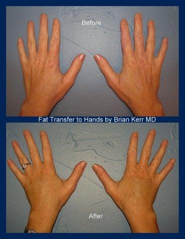 fat transfer hands