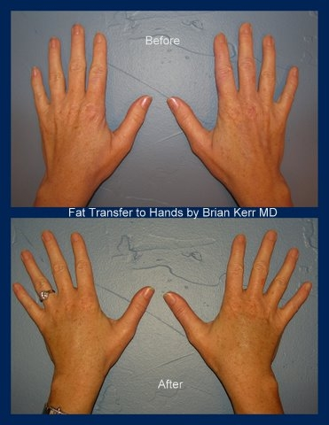 fat transfer hands