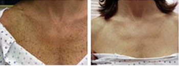 ipl before after