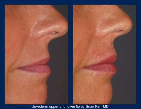 juvederm, silk touch med spa