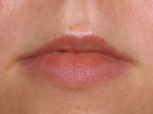 juvederm, silk touch, injectables
