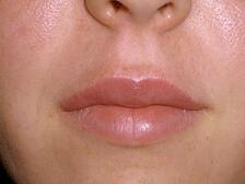 juvederm, silk touch, boise, injectables