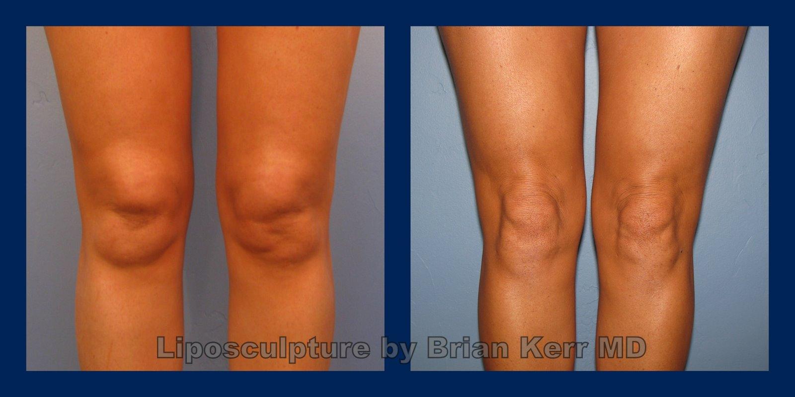 Knee liposuction, smartlipo,vaser, before after, Brian Kerr MD.P,k (2)