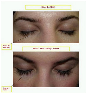Latisse eyelash enhancement before and after