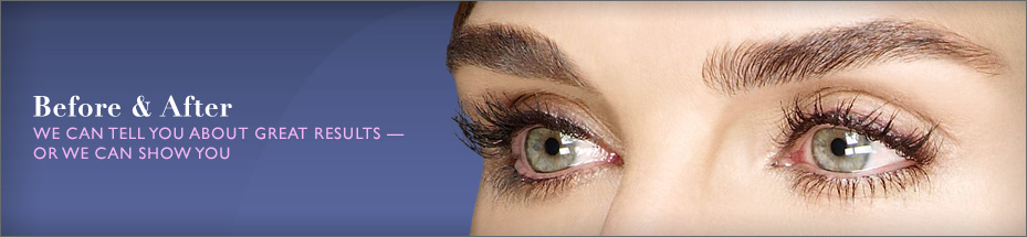 Latisse eyelash enhancement