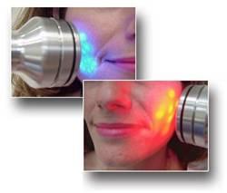 LED Acne