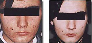 medical microdermabrasion before after silk touch med spa