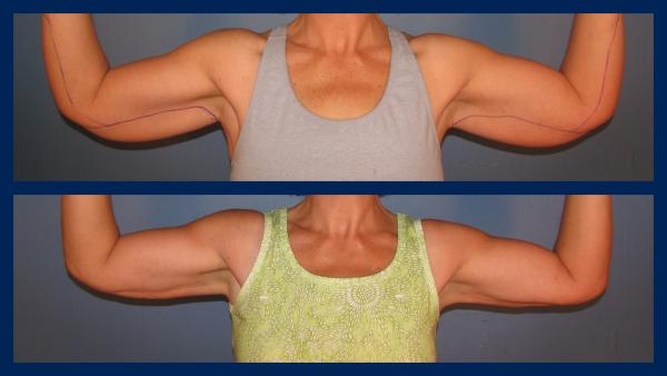 Liposuction arms, Vaser, Smartlipo