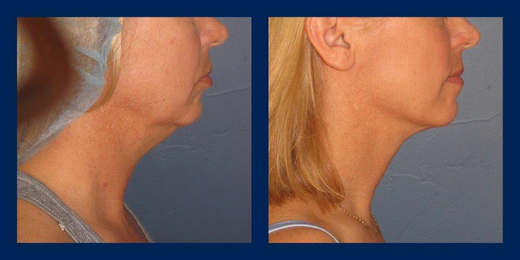 VASER neck liposuction