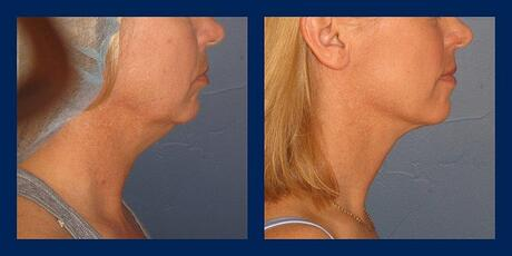 VASER neck liposuction