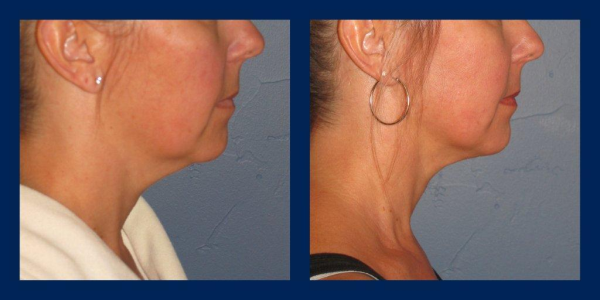 neck liposuction, Silk Touch Med Spa, Boise resized 600
