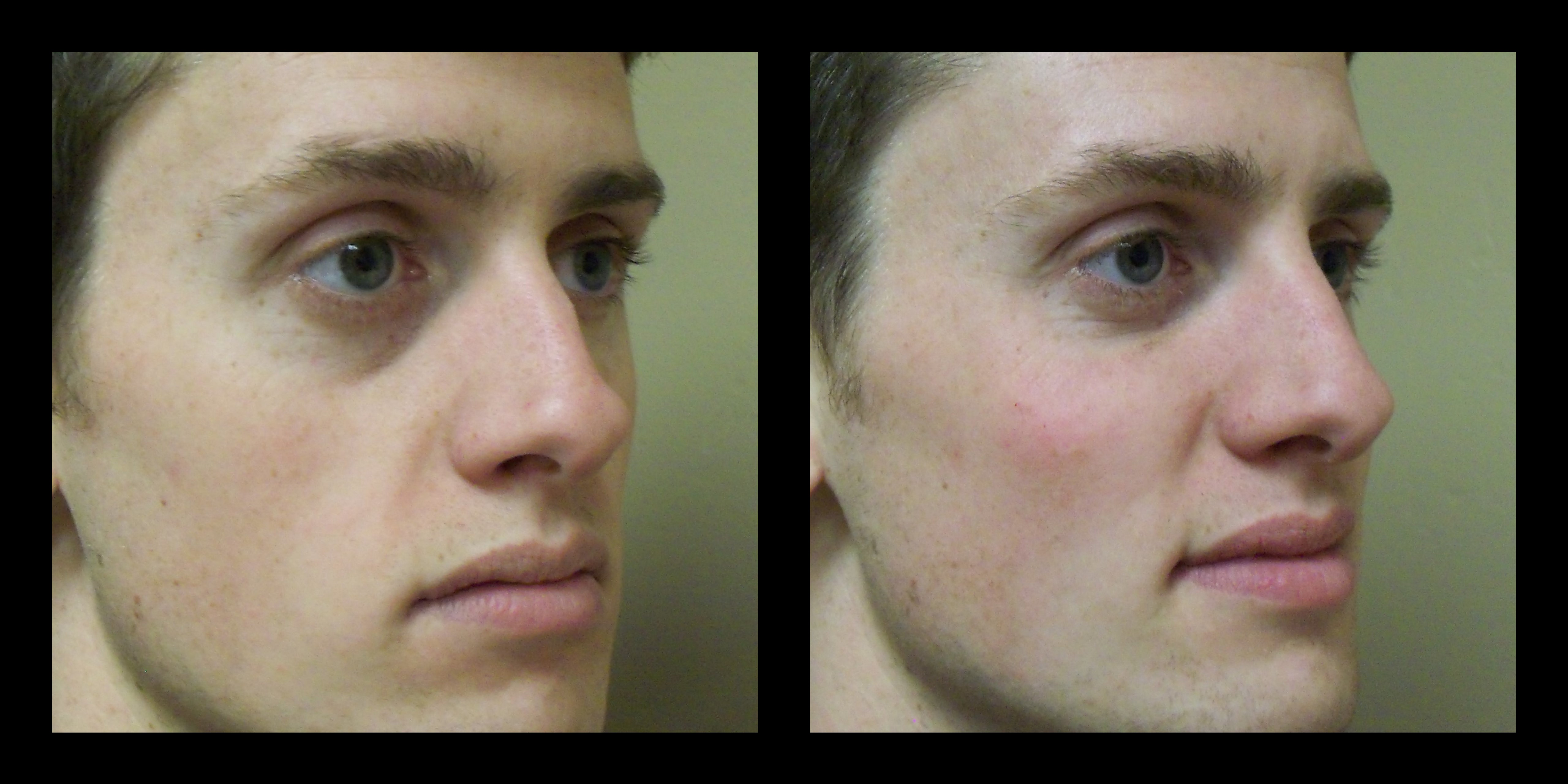 artefill before and after photos, tear trough and nose rhinoplasty