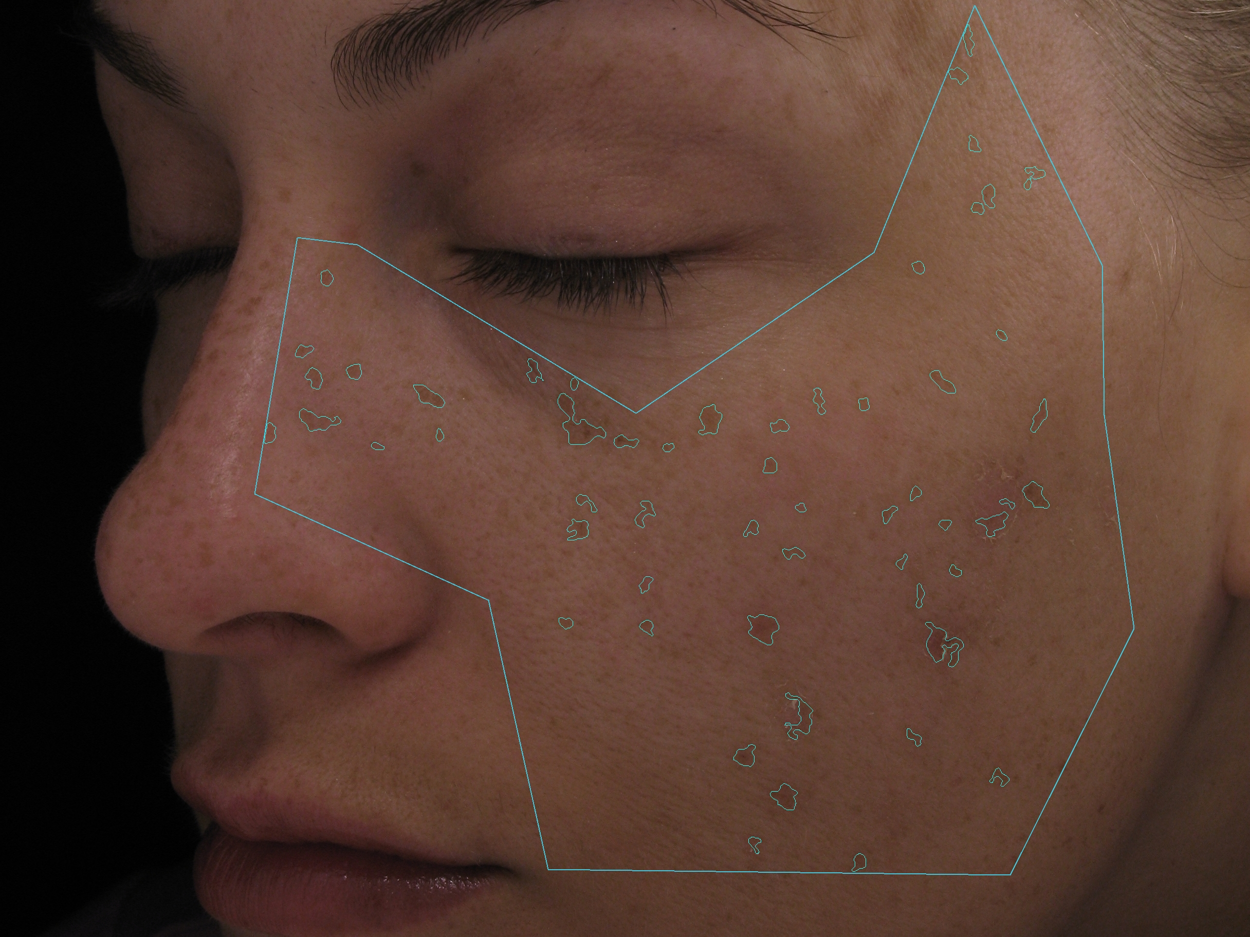 Silk Touch Rx Skin Care BEFORE MM