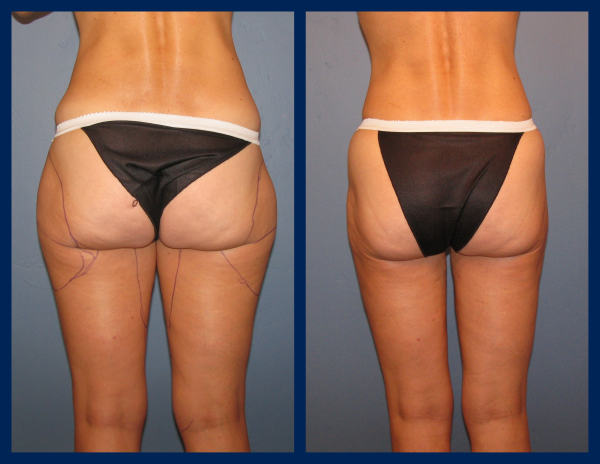 vaser liposuction boise for saddlebags, Silk Touch Med Spa, Dr. Brian Kerr