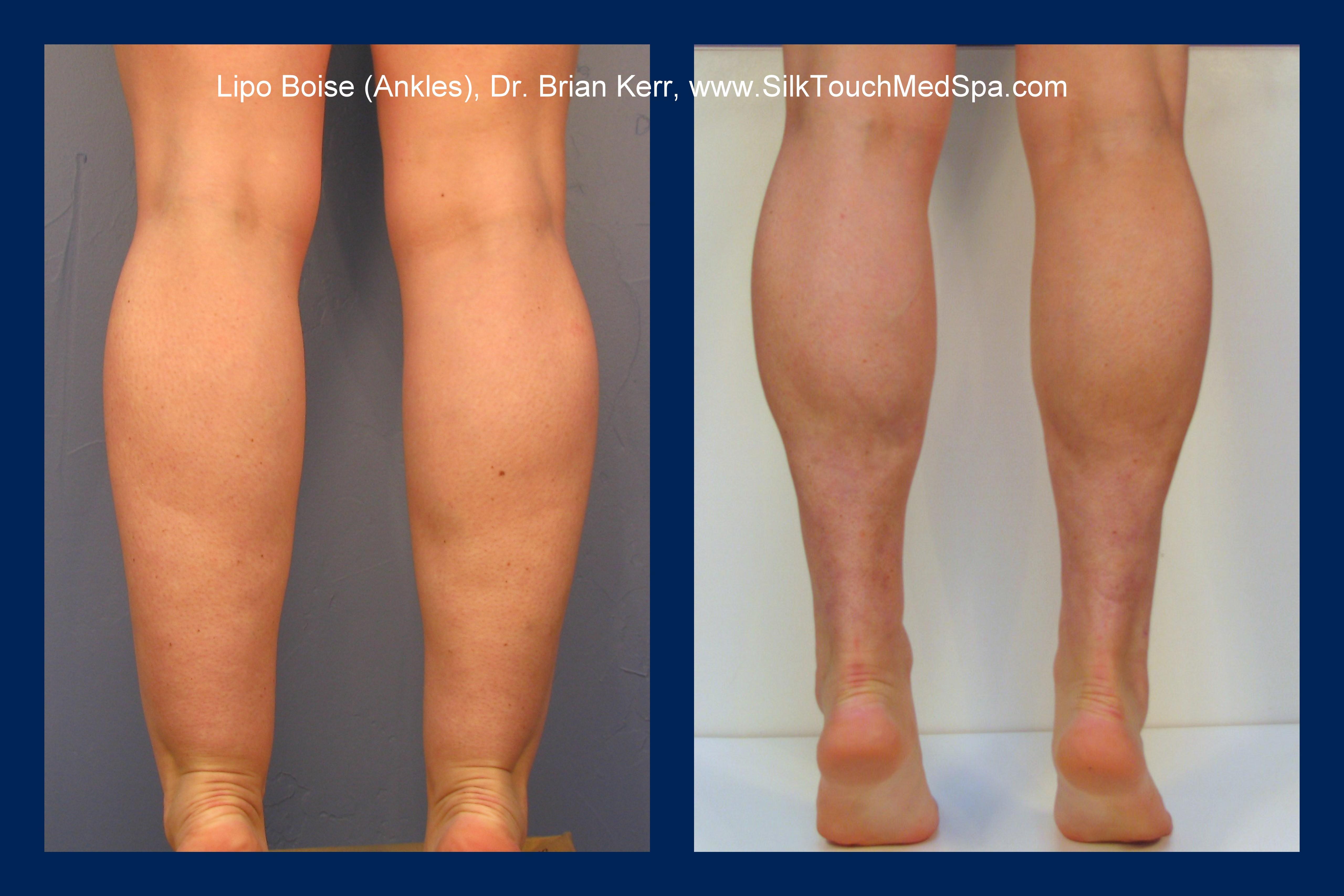 Smartlipo, Vaser, ankle liposuction, Dr. Brian Kerr, Silk Touch Med Spa, Boise