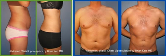 smartlipo before and after resized 600