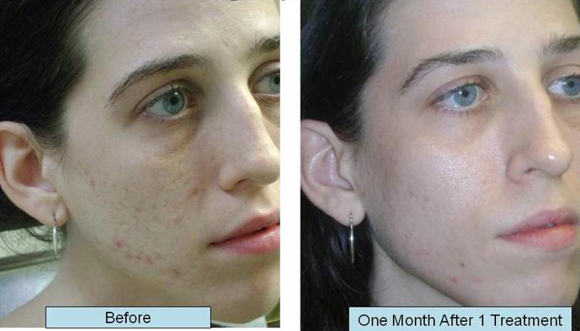 acne scar treatment boise