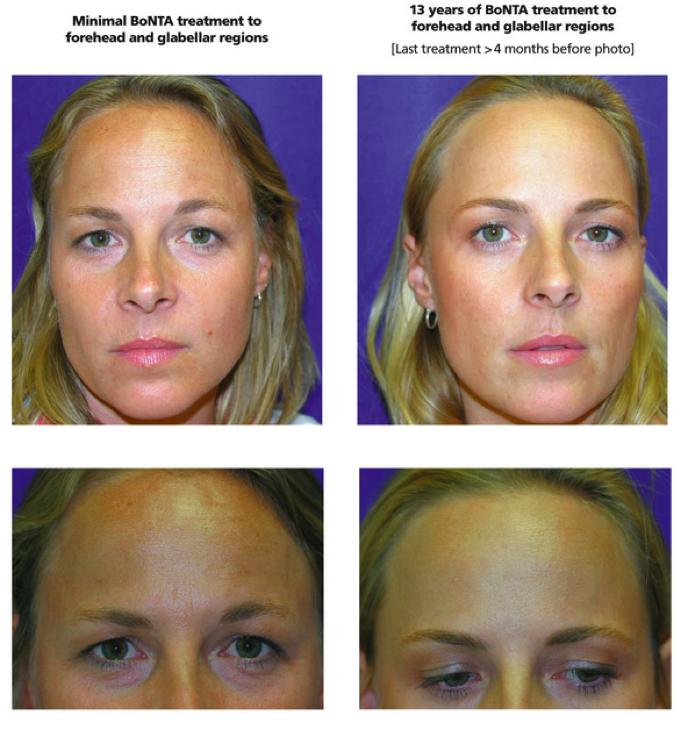 BotoxPrevention