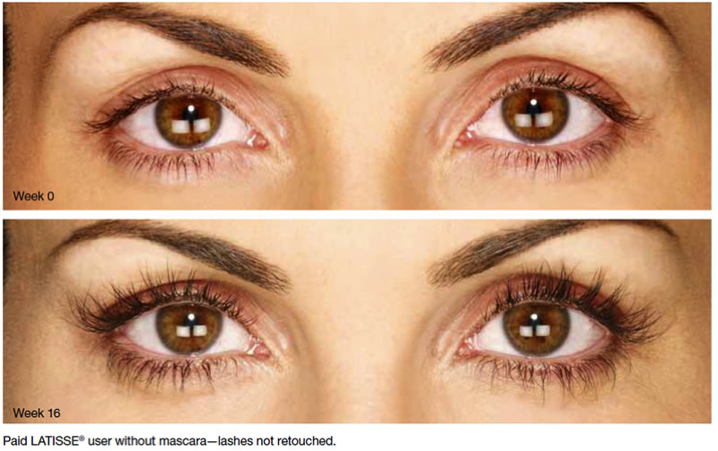Will Latisse Change My Eye Color?