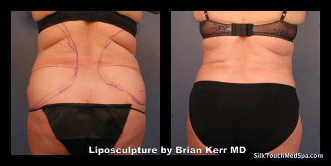 54Liposuction, Smartlipo, Before after Abdomen waist by Brian kerr MD, Boise ID