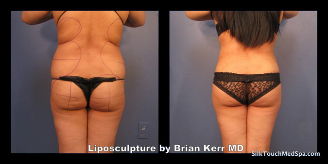 80Liposuction, Smartlipo, Before after Abdomen waist by Brian kerr MD, Boise ID