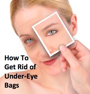 under eye Bags Boise
