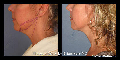 05Liposuction, smartlipo of chin and neck by Brian Kerr MD,  Boise, Idaho