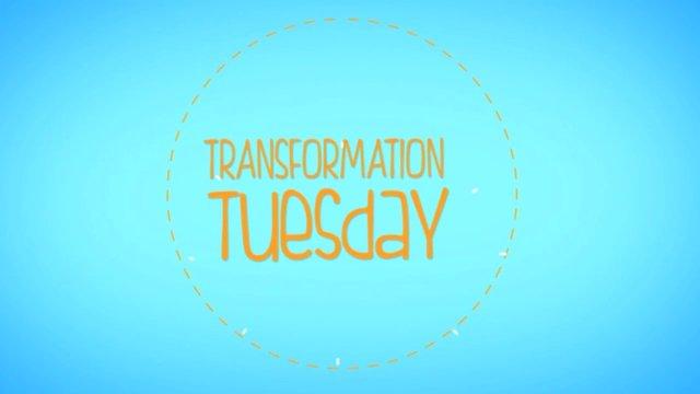 Transformation Tuesday: Smartlipo Neck