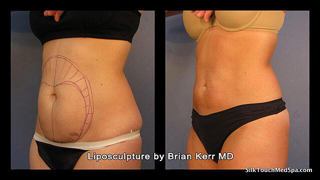 03Liposuction,-Smartlipo,-Before-after-Abdomen-waist-by-Brian-kerr-MD,-Boise-ID.jpg