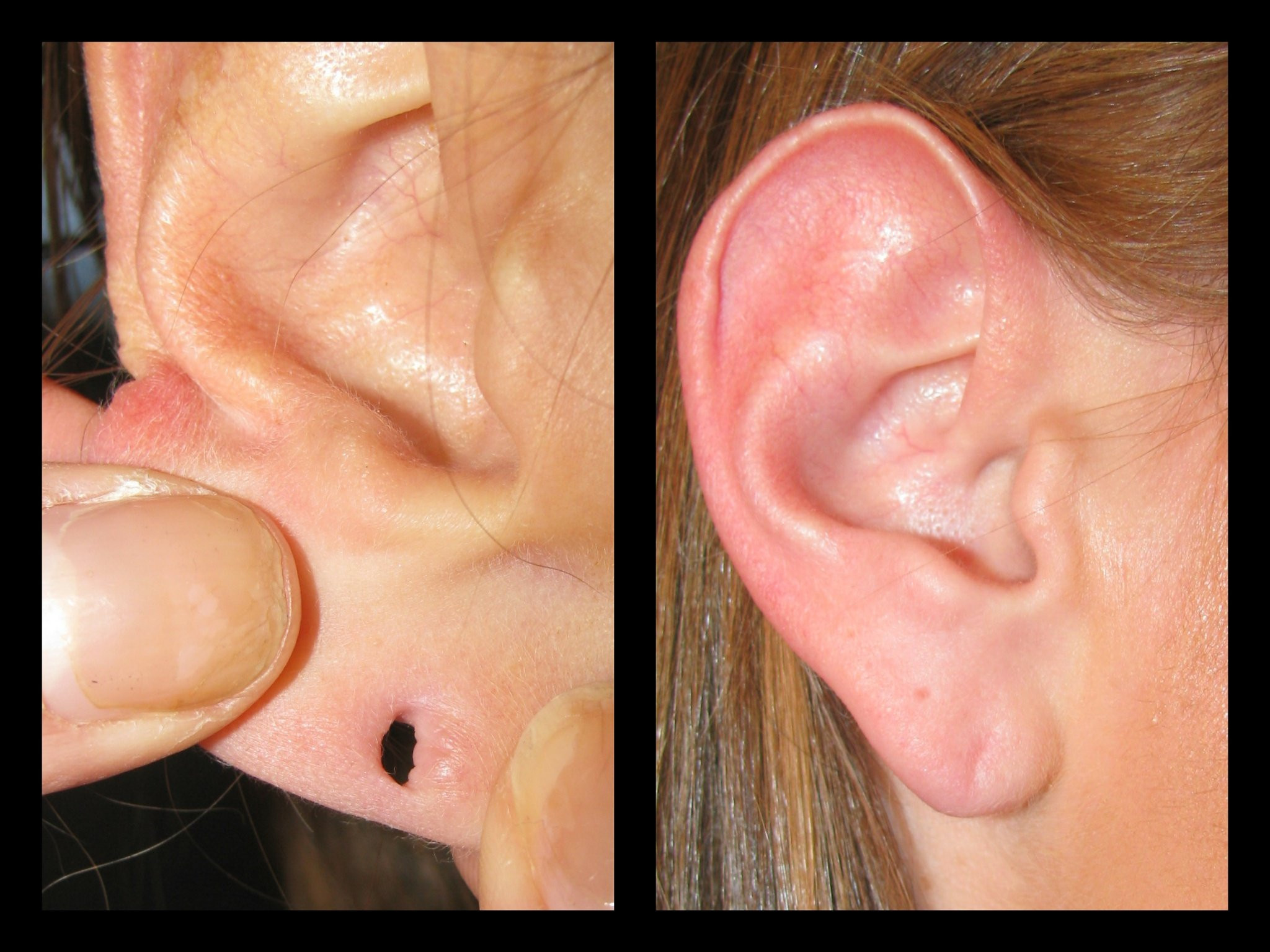ripped earlobe, earlobe repair boise, before and after silk touch