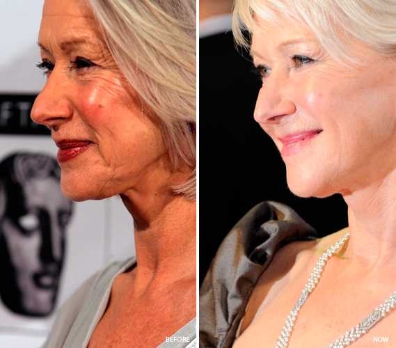 helen mirren before and after