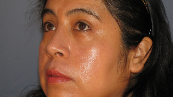 melasma before and after peel