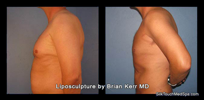 smartlipo chest male before and after