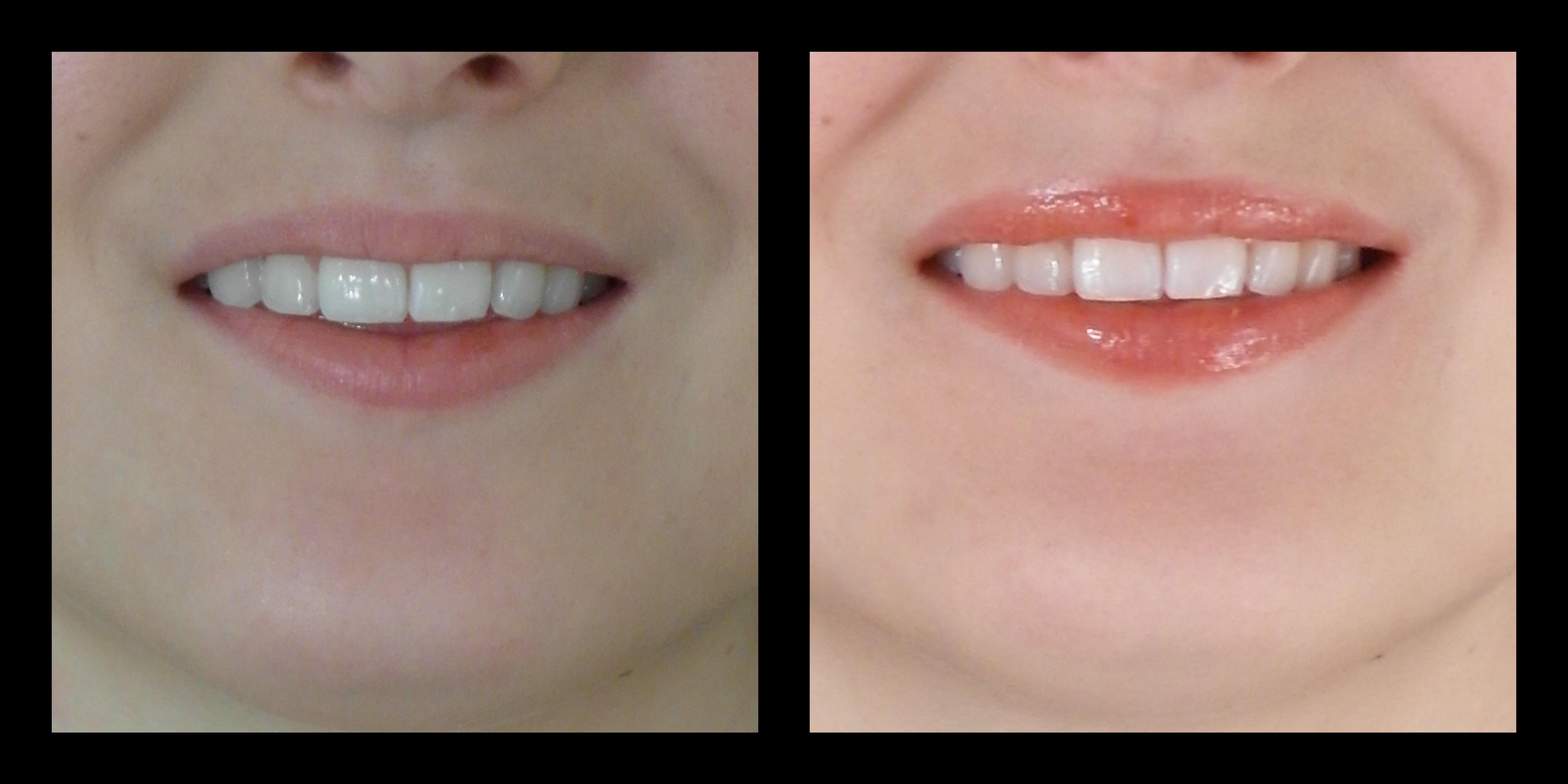 lip treatment pictures boise dr.kerr