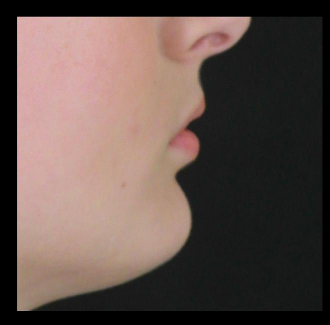 lip enhancement before boise