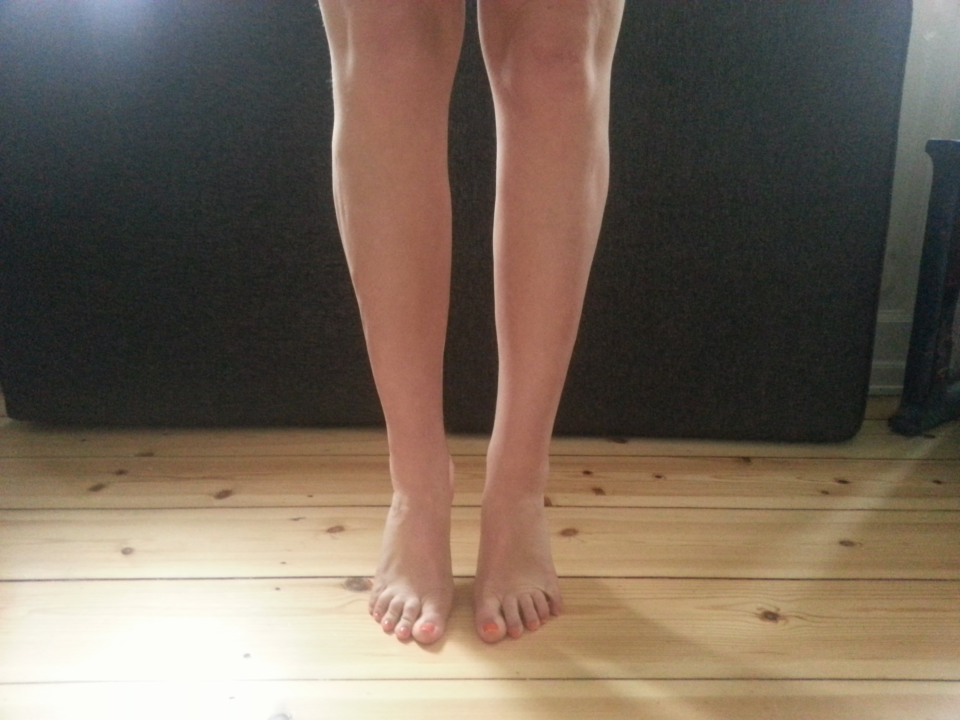 cankle lipo before after pics
