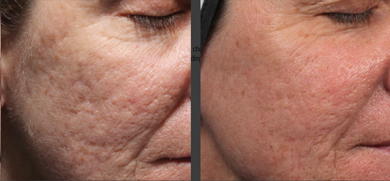 Bellafill-acne-scarring-2-1024x477.png