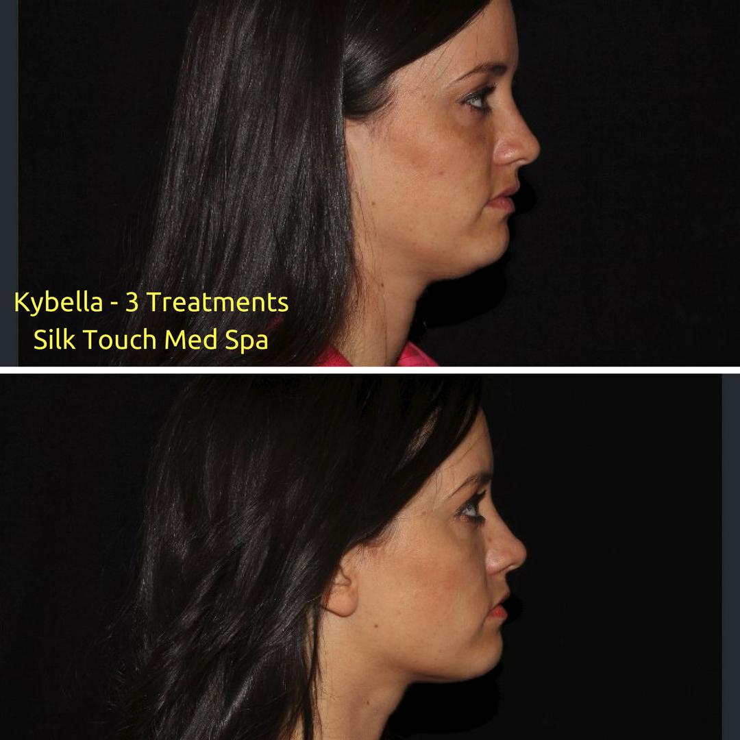 Kybella - 3 Treatments (1).png