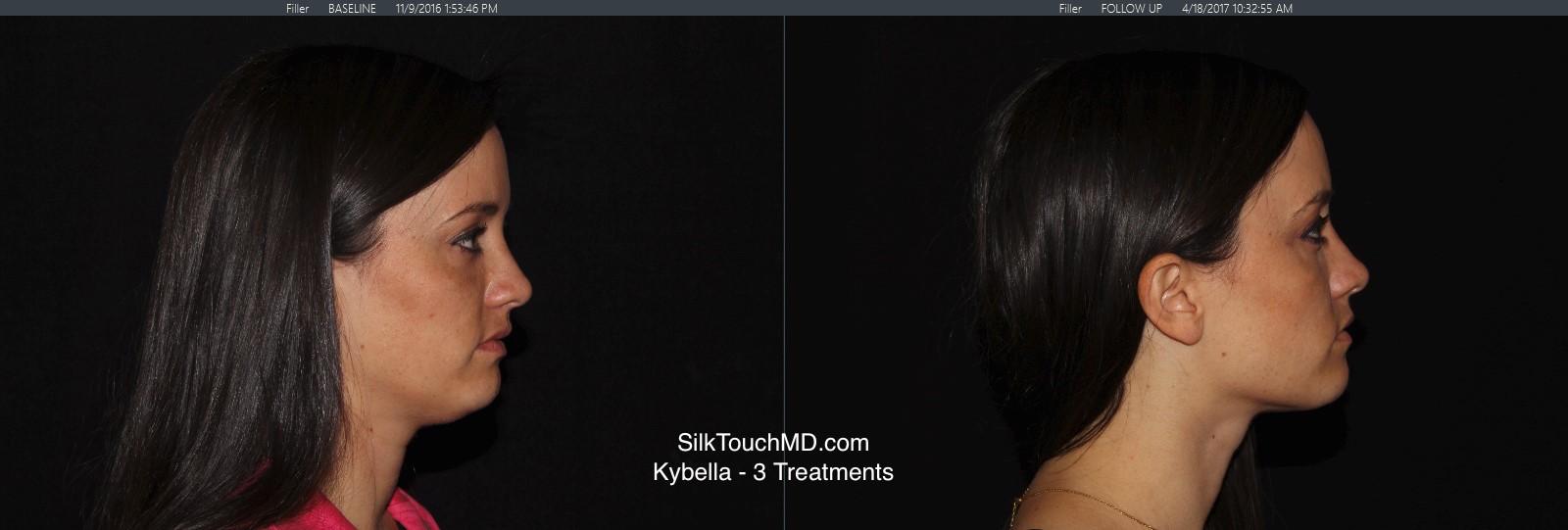 Kybella2.jpg