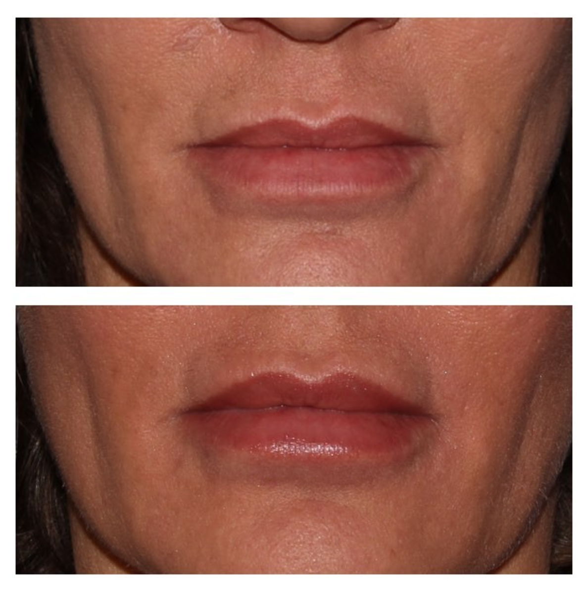 LIpBeforeAfter.png